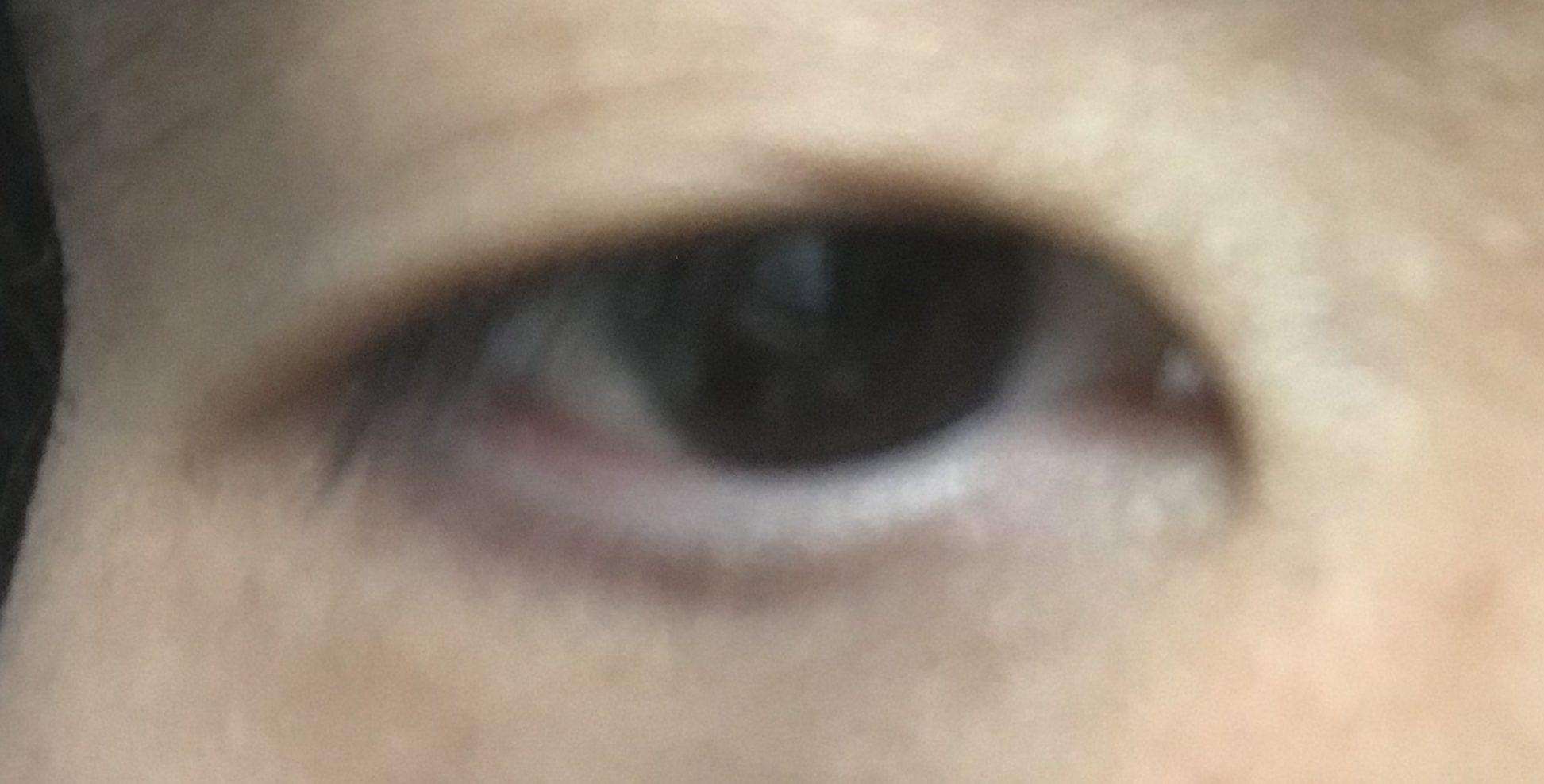 円錐角膜 コンタクトレンズ